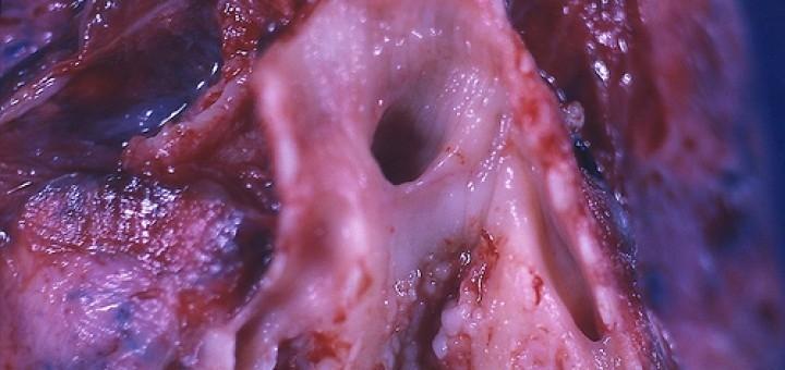 5173088480_b9c68d1a43_tumor