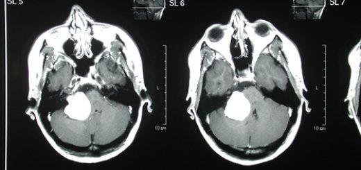5349367127_f1d88df99f_tumor